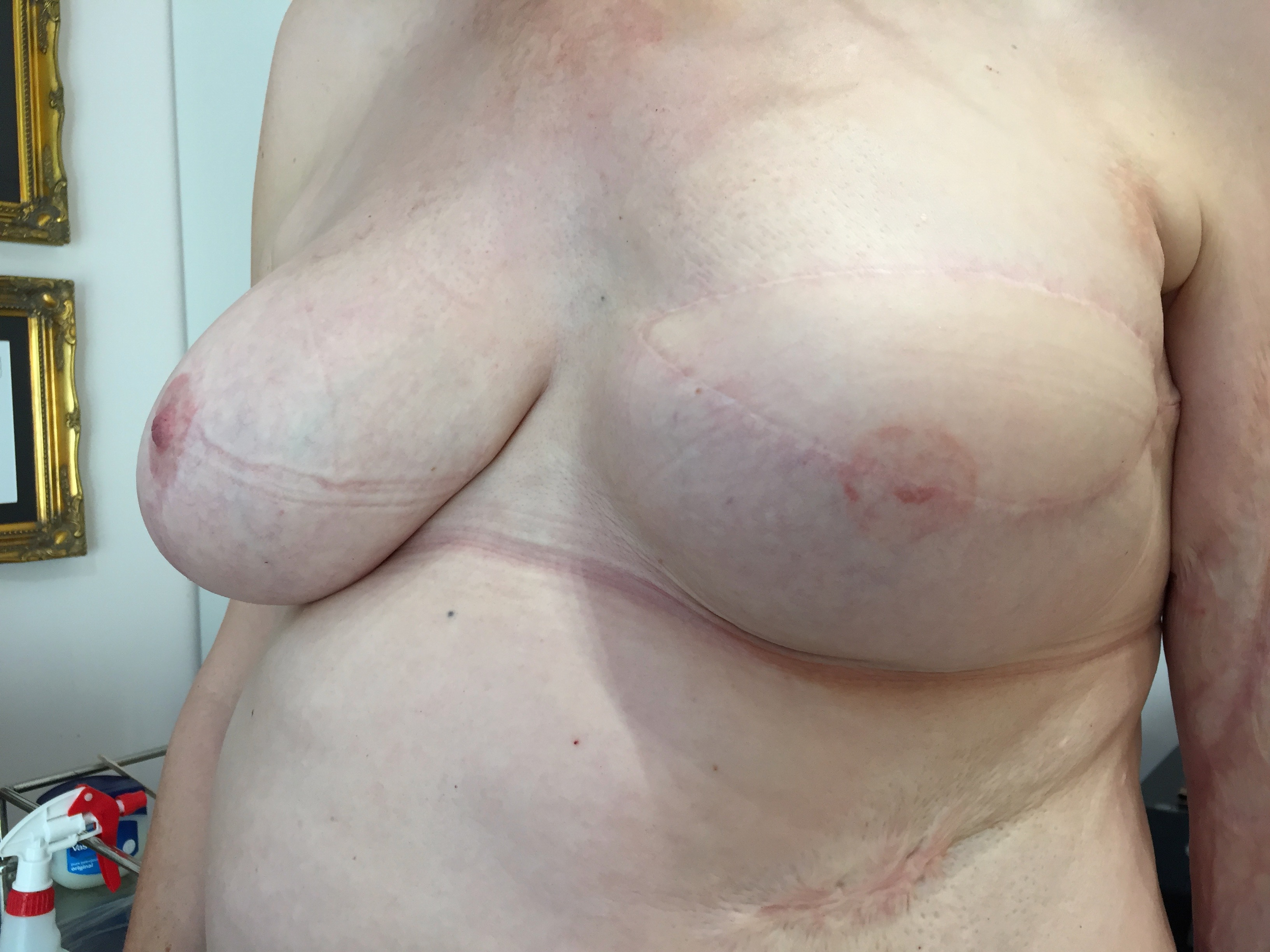 Cancer survivor, offering hope to women recovering from breast cancer, hopes to get her tattoo techniques recognised by the NHS